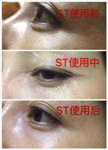ST眼膜-祛眼纹