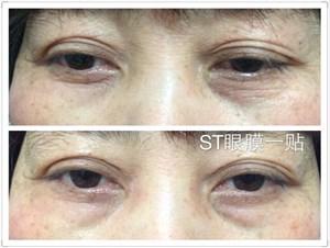 ST眼膜祛眼皱纹