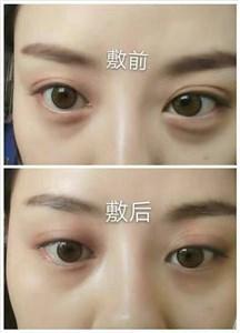 ST眼膜祛黑眼圈