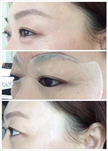 ST眼膜祛眼袋