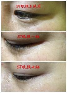 ST眼膜去黑眼圈眼纹