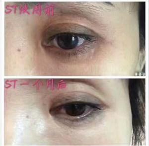 ST眼膜去改善黑眼圈祛脂肪粒
