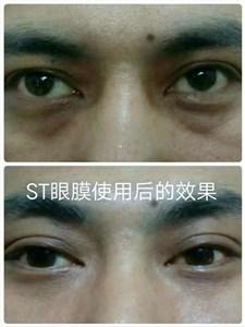 ST眼膜祛黑眼圈眼袋