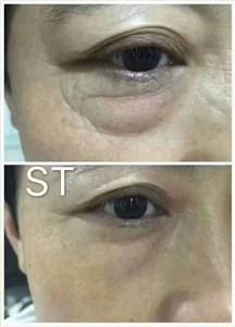 ST眼膜祛大眼袋