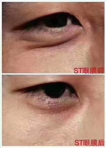 ST眼膜祛黑眼圈反馈